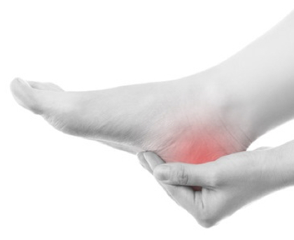 Heel Pain (Including Achilles Tendinopathy)
